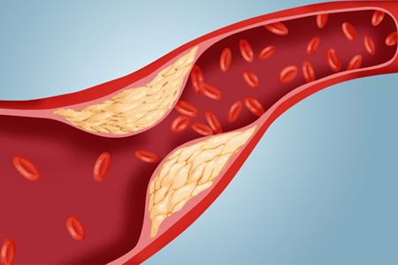 Totul despre colesterol